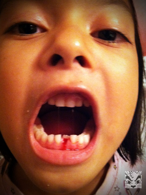 Sienna's first adult tooth had been growing in behind her baby tooth. She was encouraged to  keep loosening it with her tongue. After the sleepover, it got real loose (they were playing some game and she bit down on something, I didn't really want to know!) We were eating tortilla chips and she got one stuck in her tooth, went to the bathroom and came out with the tooth in her hand. She pulled it out!